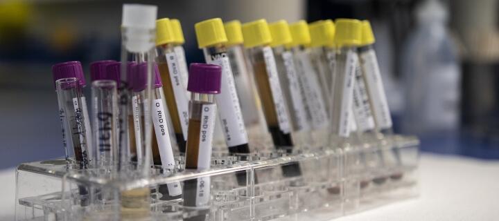 Down-Syndrom: Trisomie-Bluttest wird unter engen Voraussetzungen Kassenleistung